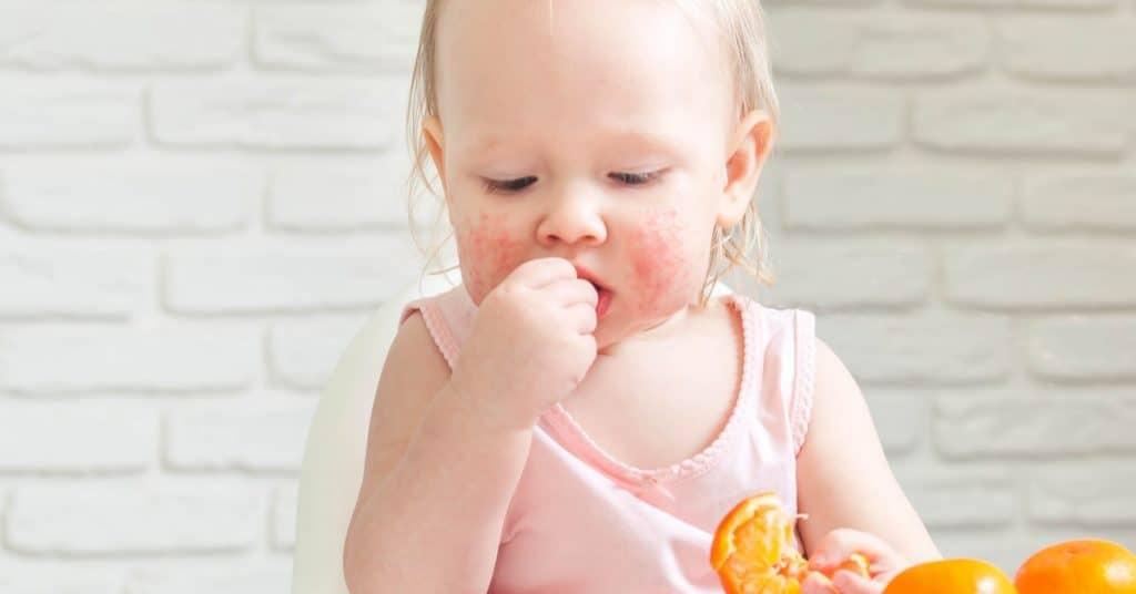 Bebeklerde Çilek Alerjisi Nelerdir?