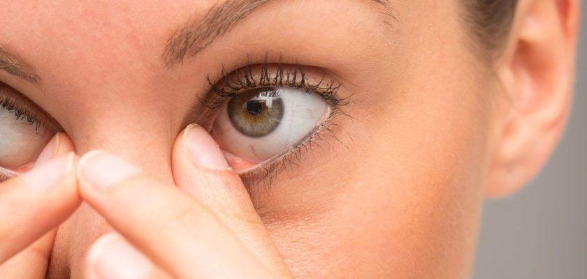 Göz Kuruluğu Tedavisi