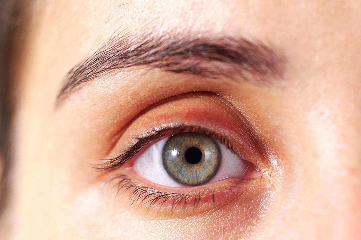 Sarı Nokta Hastalığı Ve Tedavi Yöntemleri Nelerdir?