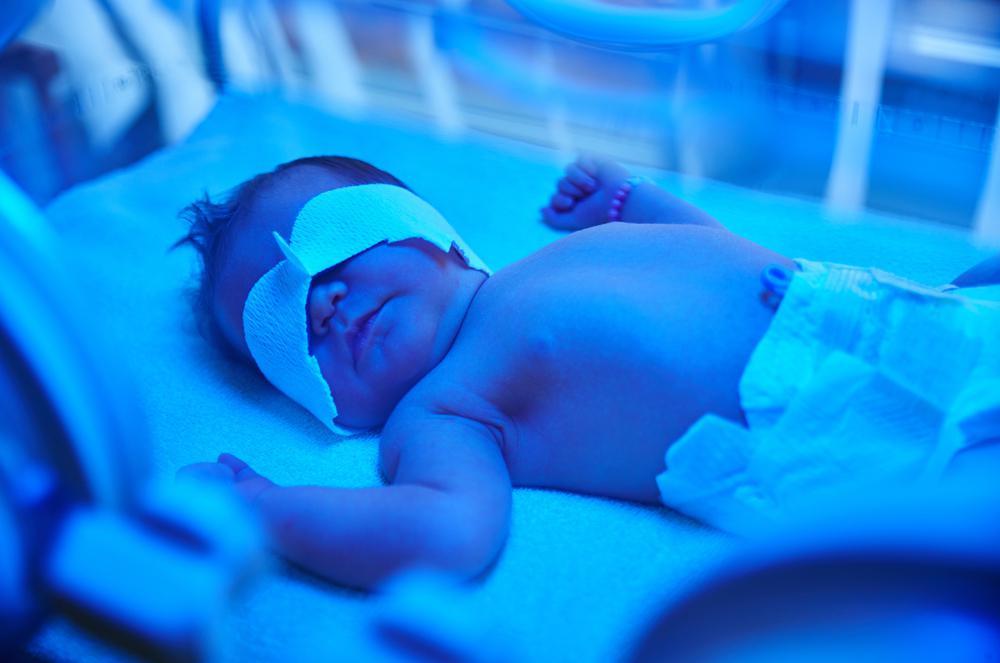 Bebeklerde sarılık ne yapılması gerekir?